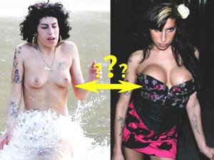 Amy Winehouse's Implants
